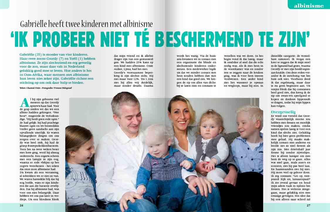 1c693e80c32e83 Kinderen met albinisme - Mijn Geheim Mijn Geheim